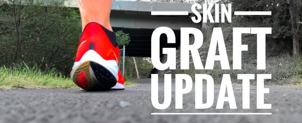 skin graft update week 5