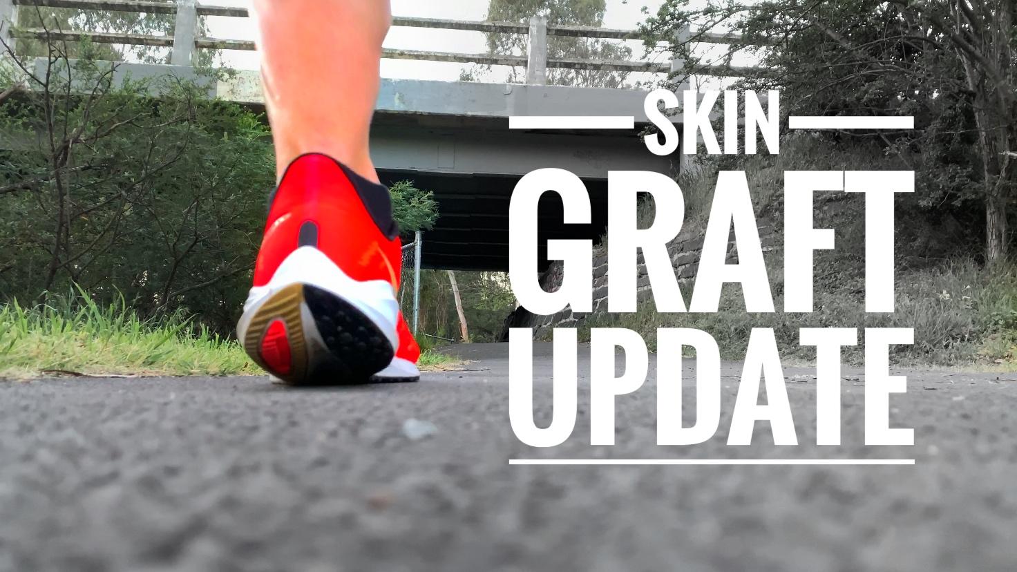 Skin Graft Update: 5 Weeks After Melanoma Surgery